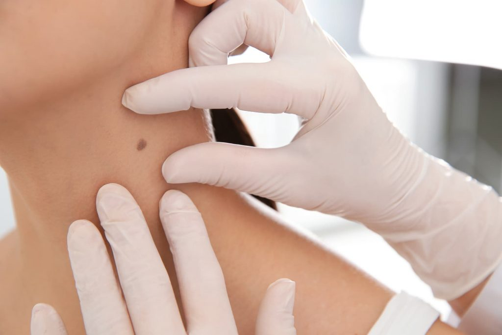 Dermatologist examining patient's mole in the neck